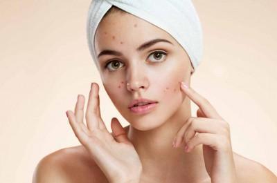 Mỗi lần, bạn cũng chỉ nên để mặt nạ trên da khoảng 15-20 phút là vừa đủ cho da hấp thụ